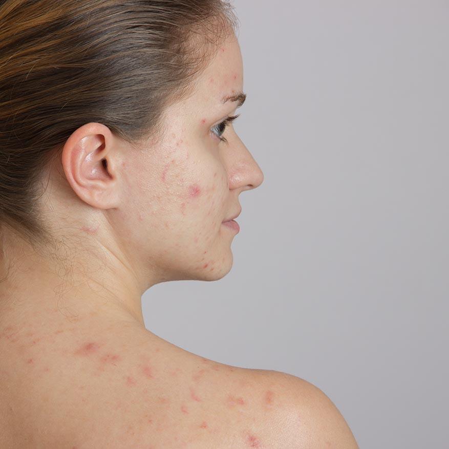 Frau mit Akne - ob kaltes Plasma Besserung erreicht?